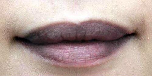 Nguyên nhân dẫn đến thâm môi